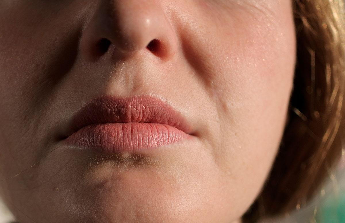 Muttermal Entfernung im Gesicht - Meine Erfahrung bei The