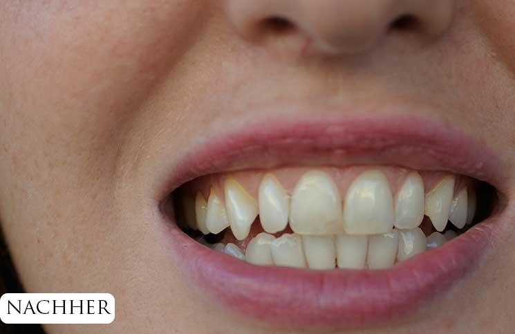 Zähne-bleachen-endlich-weiße-Zähne-ansicht-von-vorne-nach-dem-bleachen