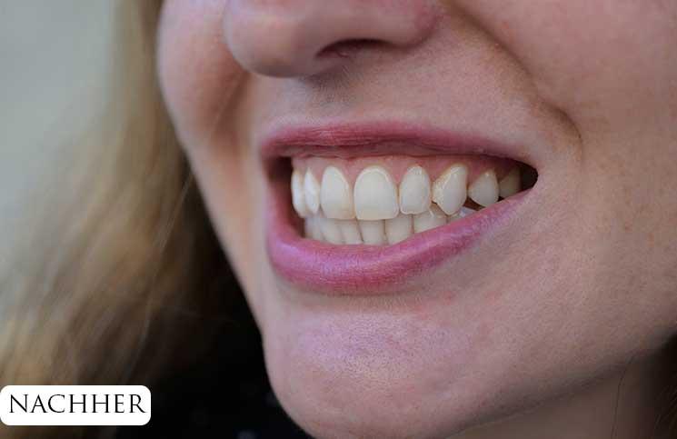 Zähne-bleachen-endlich-weiße-Zähne-nach-dem-aufhellen