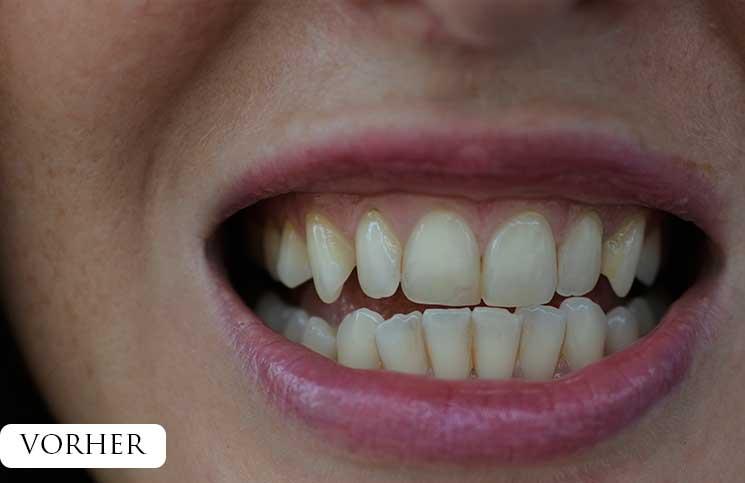Zähne-bleachen-endlich-weiße-Zähne-vor-dem-bleachen-gelbe-zahnzwischenräume